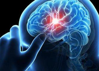 Semne de alarmă că urmează să suferi un accident vascular cerebral. Nu le ignora!
