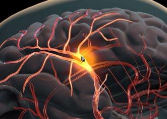 Cum știi dacă o persoană face accident vascular cerebral și cum intervii rapid?