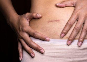Un ghid complet de apendectomie. Cum se identifică apendicita? Diagnostic, intervenție chirurgicală și recuperare