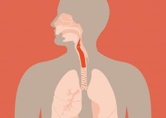 Cancerul la gât, provocat de un virus cu transmitere intimă. Petele albe și roșii din gură și răgușeala, primele semne care trebuie să te alarmeze