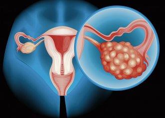 Cancerul ovarian: Mergeți de urgență la medic dacă aveți aceste simptome