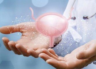 Cancerul de vezică urinară. Factori de risc. Un obicei comun crește riscul în mod substanțial