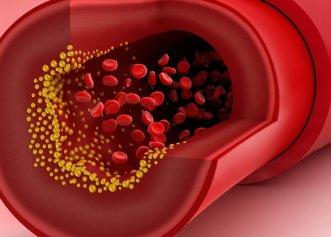 """""""Aspirina naturală"""" ameliorează durerile reumatice și previne depunerea grăsimilor pe vasele de sânge"""