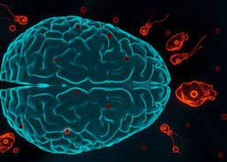 "Neurochirurg renumit: ""Durerea e cel mai important simptom al unei tumori la creier"""