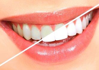 Soluții ieftine și naturale de albire a dinților. Sigur le ai și tu în cămară